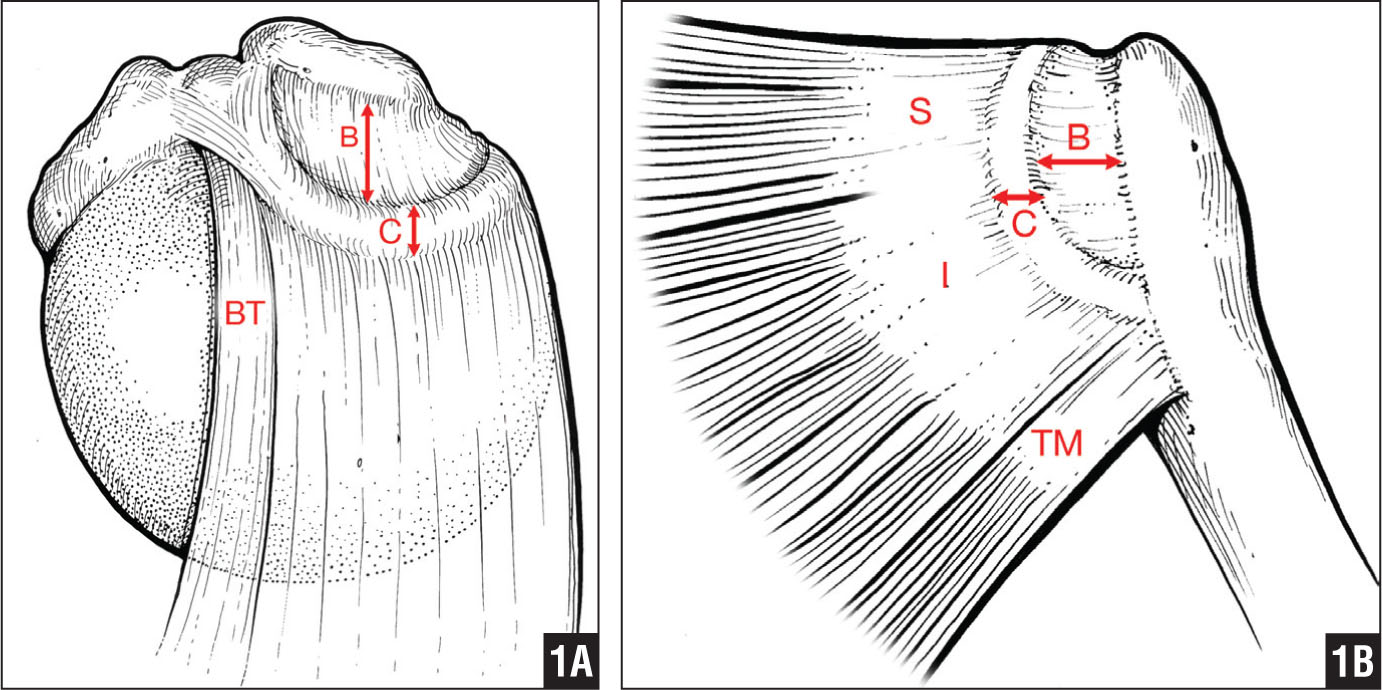 "Superior (A) and posterior (B) projections of the rotator cable and crescent. The rotator cable extends from the biceps to the inferior margin of the infraspinatus (I), spanning the supraspinatus (S) and infraspinatus insertions. Abbreviations: B, mediolateral dimension of the rotator crescent; BT, biceps tendon; C, width of the rotator cable; TM, teres minor. (Adapted with permission from Burkhart et al. The rotator crescent and rotator cable: an anatomic description of the shoulder's ""suspension bridge."" Arthroscopy. 1993; 9(6):611–616. Copyright © 1993, Elsevier.)"