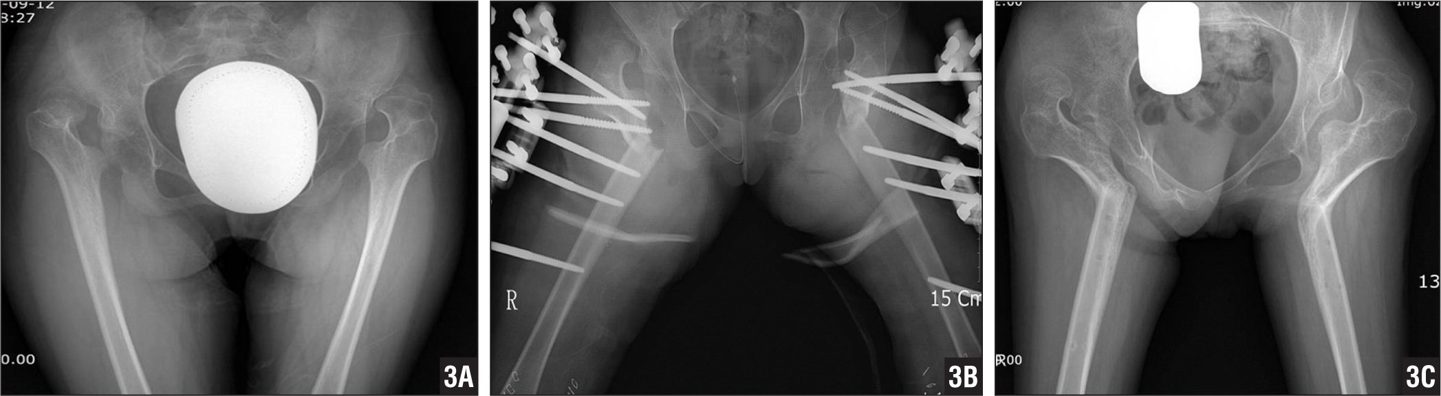 Anteroposterior radiograph of the pelvis with both hip joints in a 14-year-old girl showing bilateral hip dislocation with arthritic changes on the femoral head and a severely dysplastic acetabulum (A). Anteroposterior radiograph of the pelvis with both hips showing subtrochanteric valgus osteotomy performed using monlateral external fixator (B). Anteroposterior radiograph of the pelvis with both hips 1 year postoperatively showing the well-healed osteotomy with a valgus angle of approximately 50° (C).