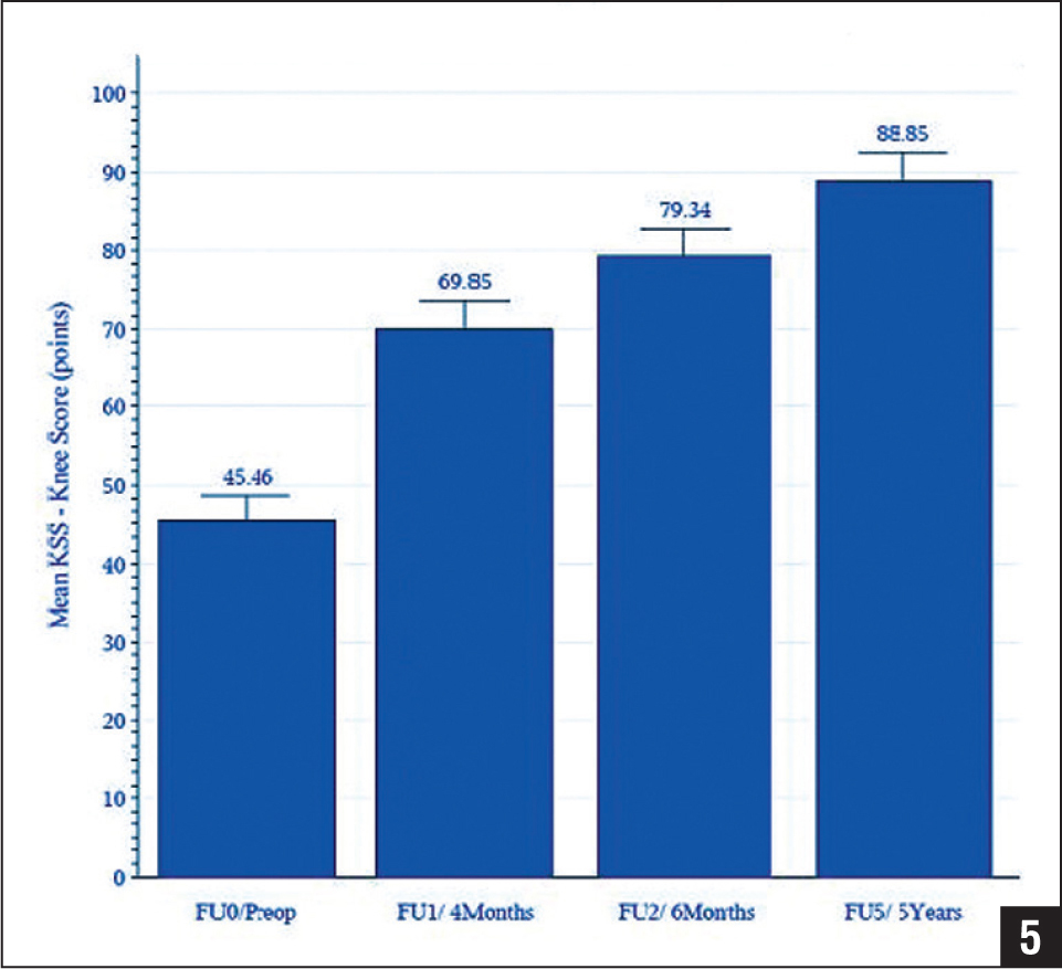 Graph showing mean Knee Society (KSS) knee score during 5 years of follow-up (FU). Note the significant improvement in the score between 6 months and 5 years (10 points), which emphasizes the importance of educating the patients to continue physical therapy beyond 6 months. Abbreviation: Preop, preoperative.