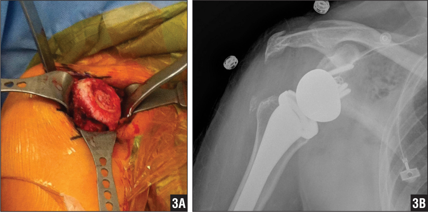 Postarthroscopic Humeral Head Osteonecrosis Treated With Reverse