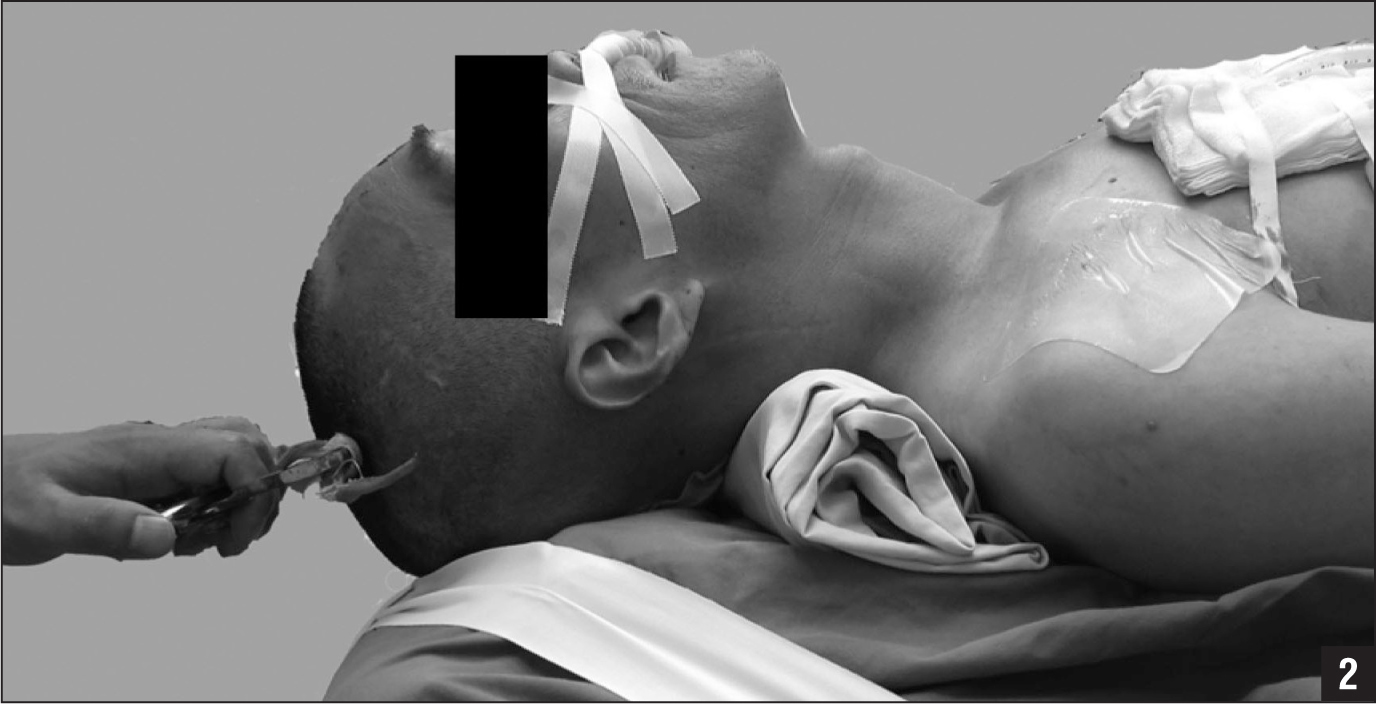 Photograph of a nasotracheal intubation that was performed while patients were conscious. The patient was placed in the supine position with the neck in full extension. Constant traction was provided while positioning patients with a fracture.