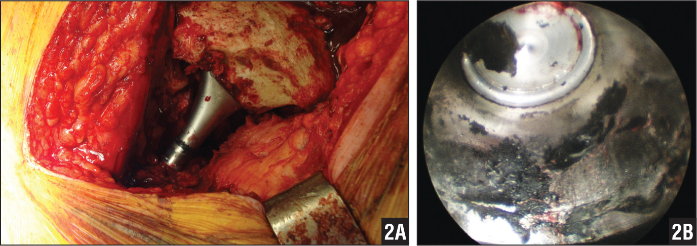 """Intraoperative photograph of the exposed femoral neck and head components prior to exchange with marked tissue necrosis evident about the adjacent greater trochanter, termed a """"bald trochanter"""" (A). Intraoperative arthroscopic image showing the surface corrosion and debris along the trunion within the removed femoral head."""