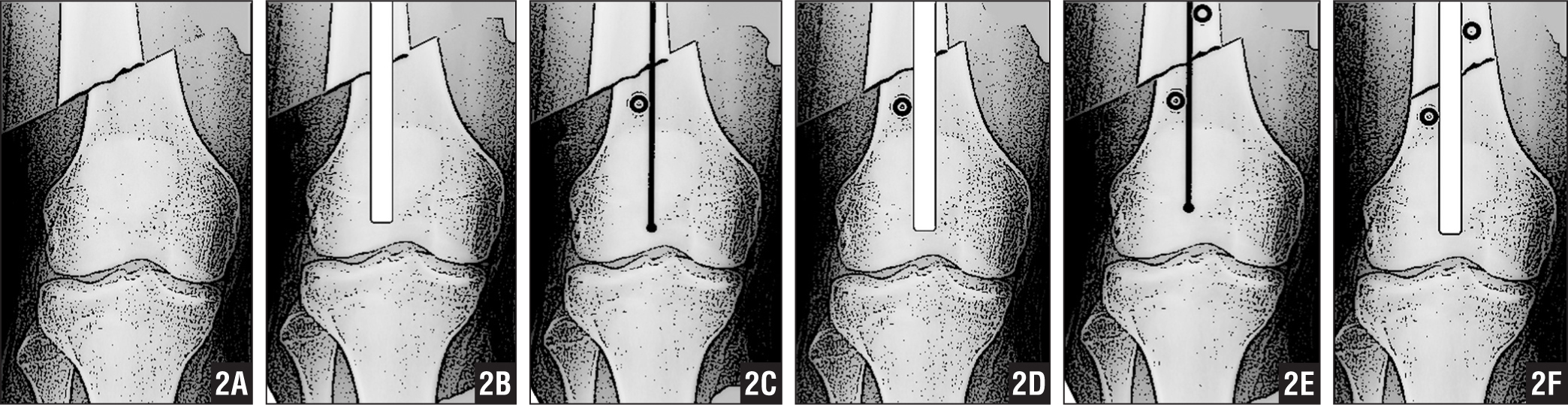 Illustrations showing the use of blocking screws to correct a deformity on the coronal plane. Valgus or varus deformity or translation may occur depending on the fracture morphology on coronal plane in distal femur fractures (A). If satisfactory deformity correction cannot be obtained when the nail is applied, the nail is removed and the guidewire is left inside (B). If valgus deformity or translation to the medial side is present, a blocking screw is placed on the large distal fragment from the lateral side of the guidewire in anteroposterior direction (C). The nail is reapplied, and reduction is achieved (D). If desired reduction is still not achieved, the nail is removed and a second blocking screw is applied to the proximal fragment from the medial side in valgus deformity (E). The nail is readvanced, and reduction is achieved (F).