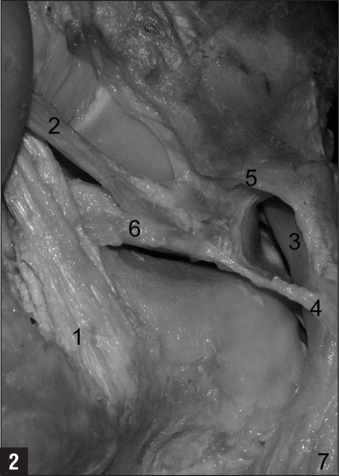 Posteromedial photograph of the popliteal hiatus of a right knee showing the posterior cruciate ligament (1), posterior meniscofemoral ligament (2), popliteal hiatus with popliteus tendon (3), posterosuperior popliteomeniscal ligament (4), anteroinferior popliteomeniscal ligament (5), lateral meniscus posterior horn (6), and popliteus muscle (7). Right=posterolateral, left=anteromedial, top=superior, and bottom=inferior.