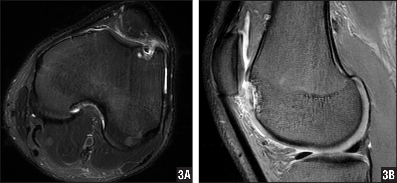 T2-weighted axial (A) and sagittal (B) magnetic resonance images of patient 2 showing an osteochondral lesion of the lateral femoral trochlea with signal identifiable posterior to the lesion.