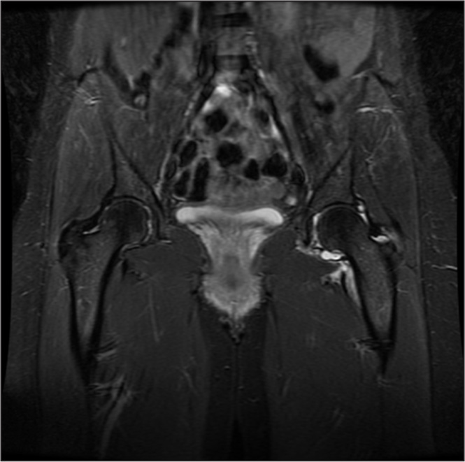 Preoperative coronal magnetic resonance image of the pelvis showing an acute effusion of the left hip.