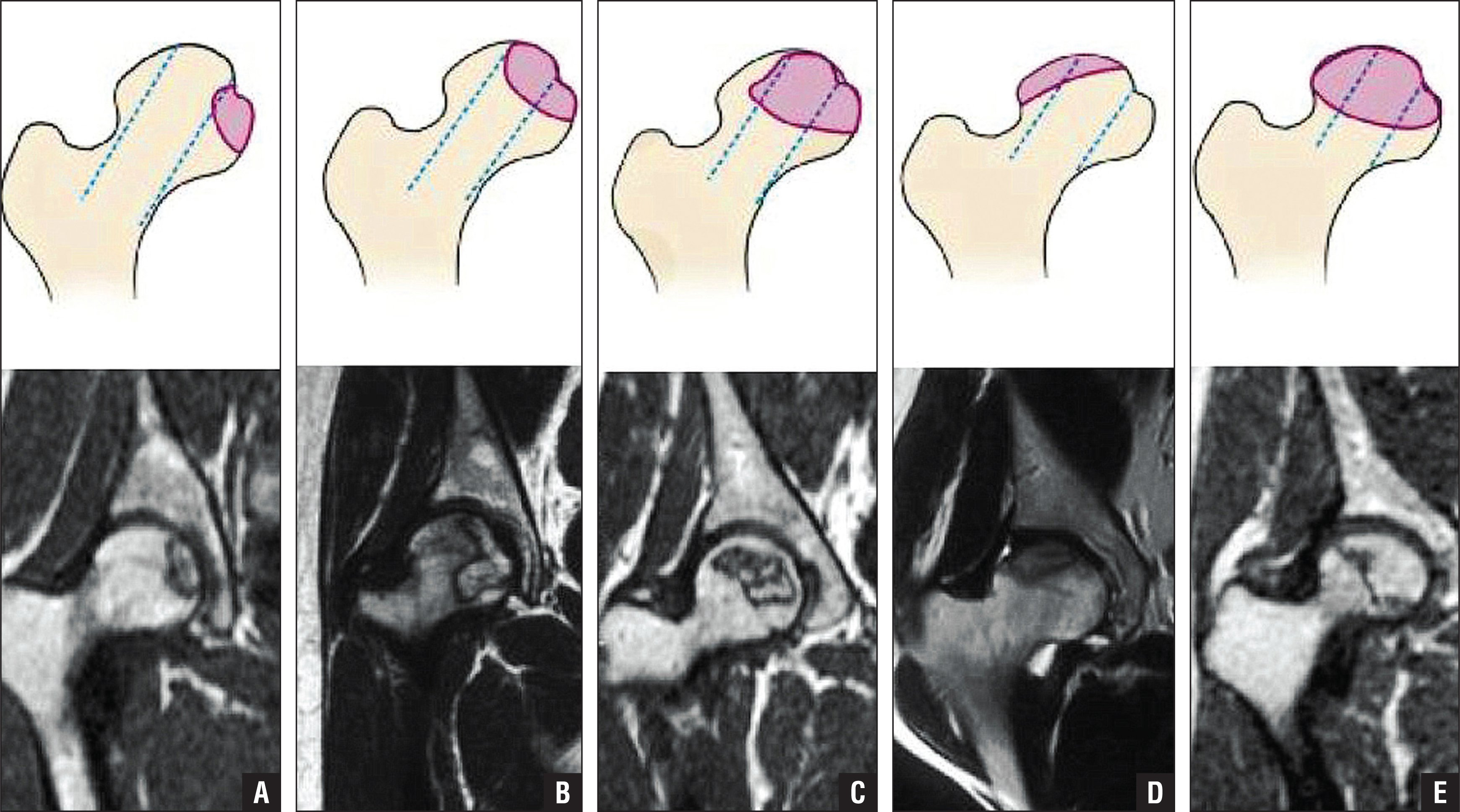Schematic diagrams (top) and magnetic resonance images (bottom) of the China-Japan Friendship Hospital classification of osteonecrosis of the femoral head based on the 3 pillars. Type M: Necrosis involves the medial pillar (A). Type C: Necrosis involves the medial and central pillars (B). Type L1: Necrosis involves all 3 pillars, but the lateral pillar is partially preserved (C). Type L2: Necrosis involves the entire lateral pillar and part of the central pillar (D). Type L3: Necrosis involves all 3 pillars, including the cortical bone and marrow (E).