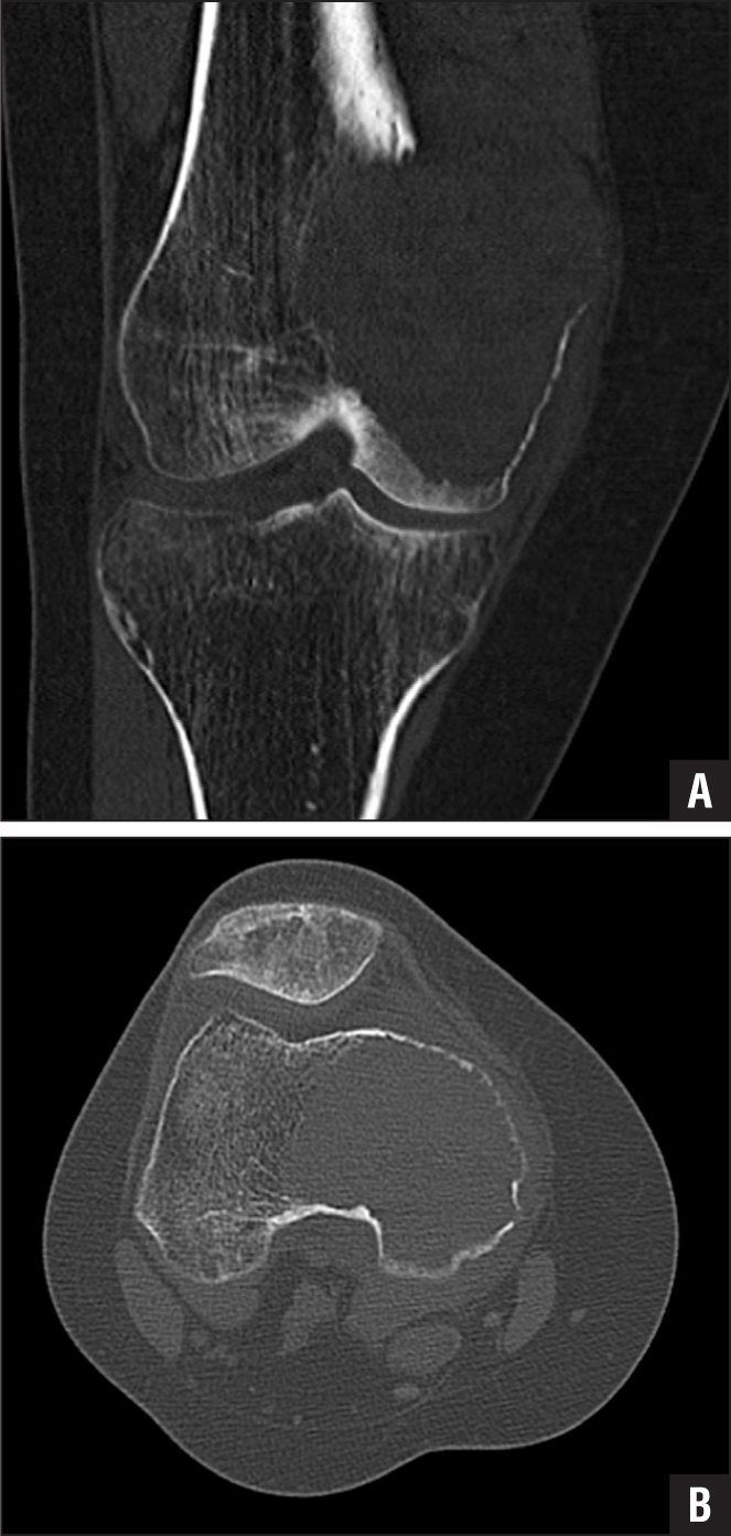 Axial (A) and coronal (B) computed tomography scans of medial femoral condylar destruction from a giant cell tumor demonstrating a uniform appearance (20 to 70 Hounsfield units).