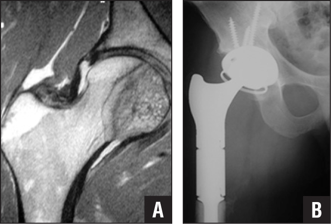 Preoperative sagittal computed tomography scan showing destruction of the femoral head by clear cell chondrosarcoma (A). Postoperative anteroposterior radiograph showing proximal femoral replacement and a GMRS proximal femur and tritanium cup (Howmedica/Osteonics, Mahwah, New Jersey) in a neutral position (B).