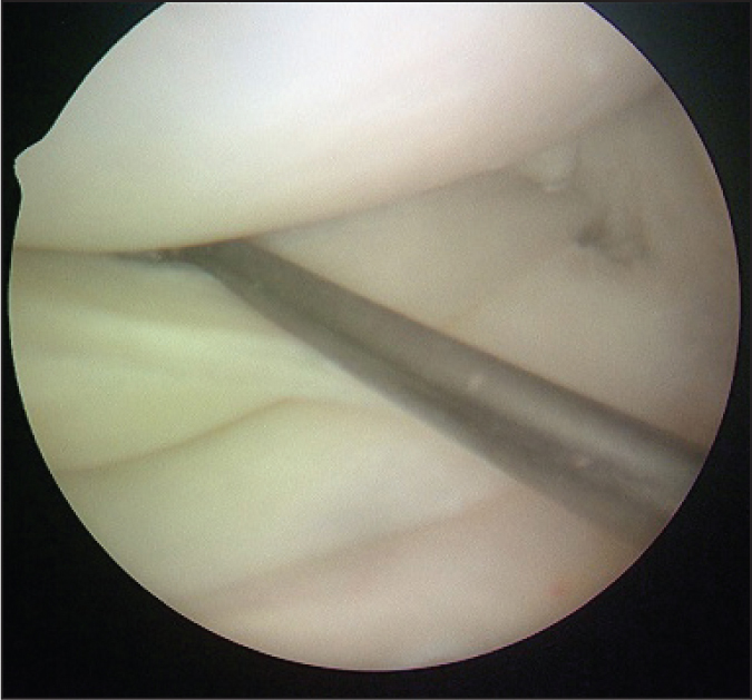 Intraoperative arthroscopic lateral compartment image showing hypermobility of the lateral meniscus (Patient 2).