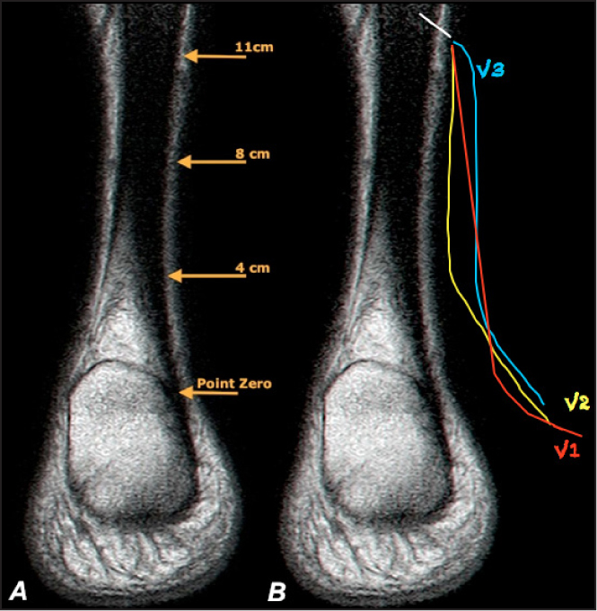 Illustration of the 4 measuring points used to determine the distance between the lateral boarder of the Achilles tendon and medial boarder of the sural nerve (A). Illustration of the courses of the sural nerve (B). Three common anatomical variations of the sural nerve track have been identified alongside the Achilles tendon: the sural draws away from the tendon in a constant splay (variation 1 [V1], accounting for 67% of instances); the sural descends (proximal to distal) parallel to the tendon immediately after it crosses its lateral border, and then drawing away from the tendon 4 cm proximal to point zero (variation 2 [V1], accounting for 23% of instances); and the sural draws away from the tendon immediately after crossing its lateral border and then it descends parallel (but not adjacent) to the tendon where, at 4 cm proximal to point zero, it draws farther away from the tendon (variation 3 [V1], accounting for 10% of instances).