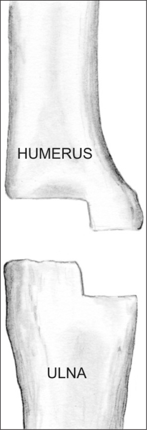 Illustration depicting a sagittal plane step-cut in the distal humerus and proximal ulna. This is a multiplanar cut and should accommodate for the elbow position in both the coronal and the sagittal planes. The step-cut provides a larger surface area for primary bone healing. (Reprinted with permission from Wiesel SW, ed. Operative Techniques in Orthopaedic Surgery. Wolters Kluwer Health, 2011.)