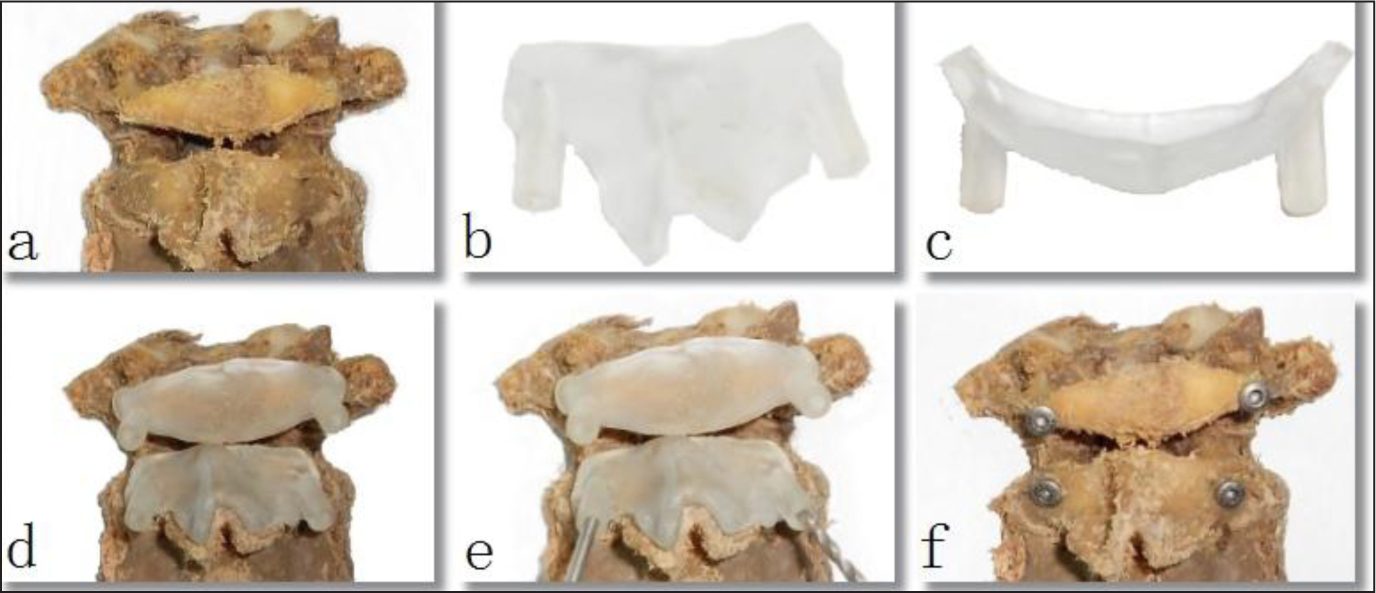 Application of the rapid prototyping drill template. Removal of soft tissue from the posterior surface of the atlantoaxial vertebrae (a). rapid prototyping drill template for the C2 pedicle screw (b), rapid prototyping drill template for the C1 pedicle screw (c), rapid prototyping drill template fixed on the corresponding area of the atlantoaxial vertebrae (d), drill placement guided by the rapid prototyping drill template (e), and pedicle screw fixation of the atlantoaxial vertebrae (f).