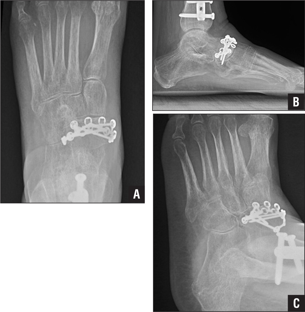 Anteroposterior (A), lateral (B), and oblique (C) radiographs obtained 6 months following the open reduction and internal fixation of the type-2 body fracture shown in Figure 7. Despite anatomic reduction of the navicular and initiation of early weight bearing, diffuse osteopenia is evident throughout the foot. Due to the patient's other injuries, her mobility was significantly limited during the initial recovery period. As mentioned, it is not uncommon for navicular fractures to present as only one of multiple injuries in a polytraumatized patient.