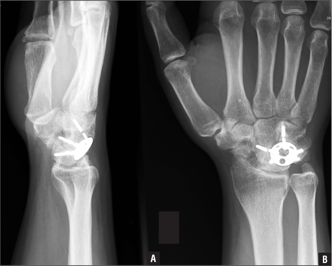 Postoperative lateral (A) and anteroposterior (B) radiographs showing breakage of the circular plate screw.