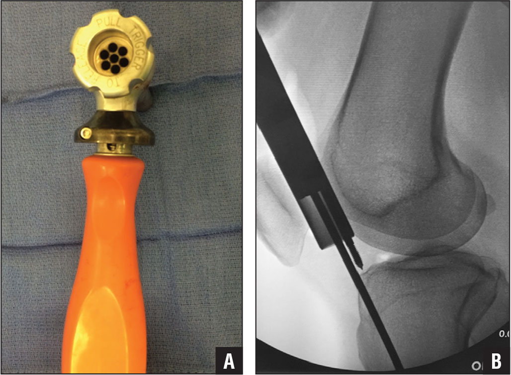 A multiholed cannula (A) allows for fine adjustments (B) of the starting point.