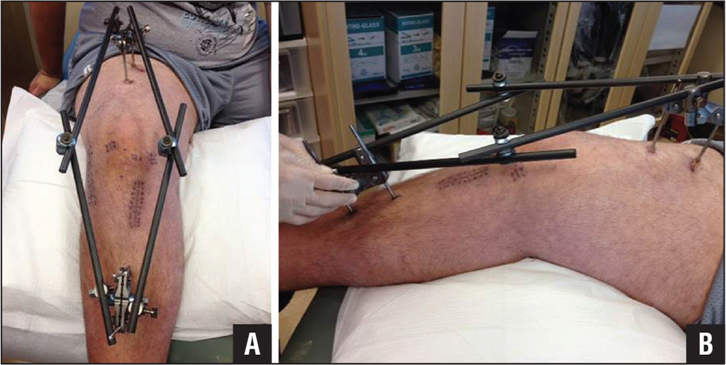Front (A) and side (B) views of external fixation across a knee after surgery for a multiligamentous knee injury.