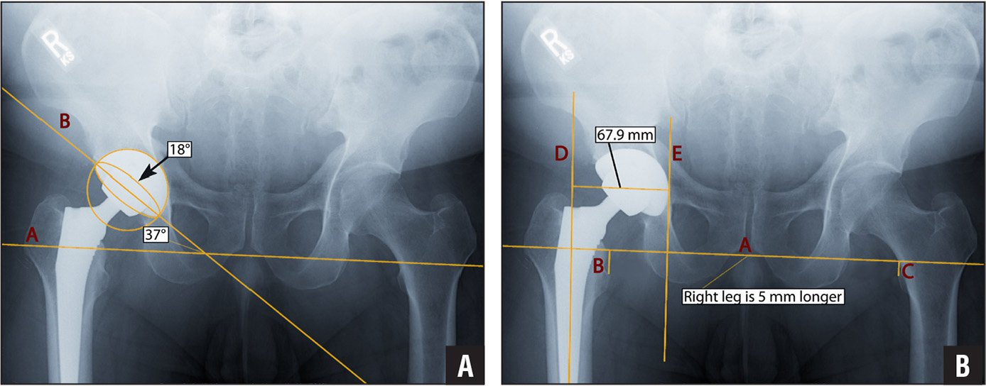 Supine anteroposterior pelvis radiograph showing measurements for cup anteversion and inclination angles. Line B is the tangent line to the opening of the acetabular cup and intersects with the interobturator reference line A on the pelvis, giving the inclination angle (37°). The ellipse that measures the anteversion angle (18°) is delineated by the contour of the acetabular cup opening and is concentric with the circle surrounding the acetabular cup (A). Supine anteroposterior pelvis radiograph showing measurements for leg-length discrepancy and global offset. Line A is the reference on the pelvis. Leg-length discrepancy of 5 mm is the difference between lines B and C. Line D delineates the anatomic axis of the femur, and line E is parallel to the anatomic axis, tangent to the teardrop (or to the most medial aspect of the acetabular cup when the cup is more medial than the teardrop). The perpendicular distance between lines D and E passing through the center of the femoral head gives the global offset value of 67.9 mm (B).