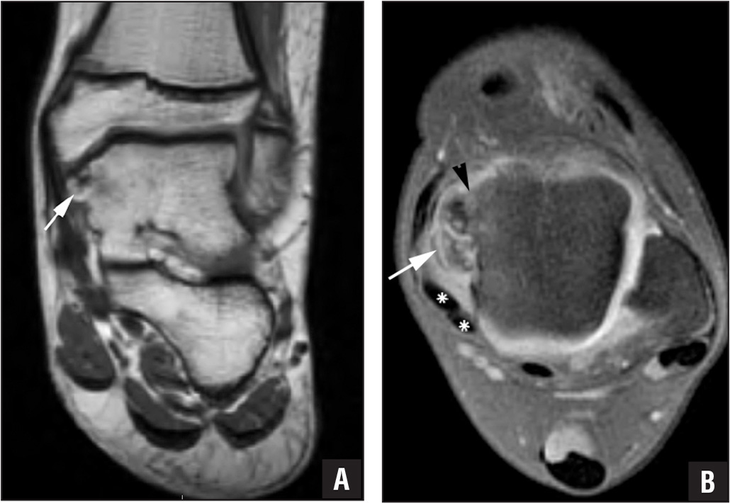Coronal T1-weighted magnetic resonance image of the ankle demonstrating an internal signal (white arrow) isointense to bone marrow/fat and low signal areas corresponding to calcification (A). Axial T1-weighted fat-suppressed magnetic resonance image of the ankle after intravenous contrast administration showing the thin cartilage cap of the lesion (white arrow), as demonstrated by an isointense signal similar to articular cartilage. There is also displacement of the tibialis posterior and flexor digitorum tendons (asterisks) with irregularity of the medial talar dome (black arrowhead) and overlying articular cartilage suggesting chondromalacia and osteochondral injury (B).