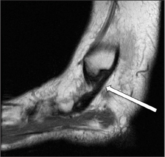 Posterior Tibialis Tendon Dysfunction: Overview of Evaluation and ...