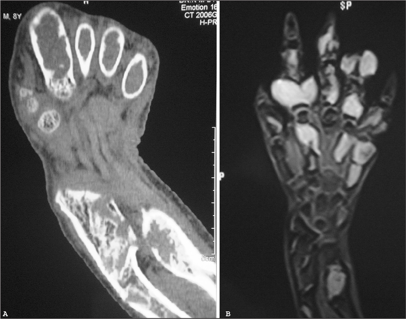 Coronal reconstructed computed tomography scan (A) and T2-weighted magnetic resonance image (B) of the right hand confirming the presence of multiple well-defined cystic lesions. No associated soft tissue component is seen. Lesions show hyperintense signal on the T2-weighted image.