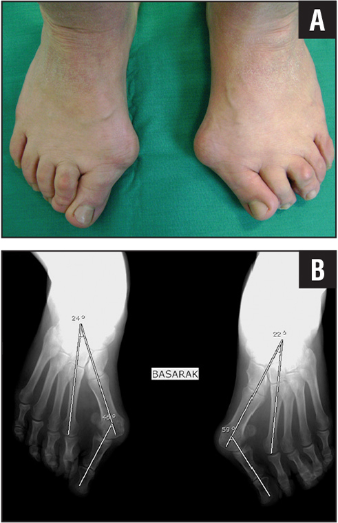 �A;Preoperative clinical appearance of a 47-year-old woman with severe hallux valgus (A). Full weight-bearing radiographs of the feet showing severe hallux valgus with incongruent metatarsophalangeal joints and pronated halluces. The hallux valgus angle was 46°. The 1–2 intermetatarsal angle was 24° on the right foot and 59° and 22° on the left foot (B).