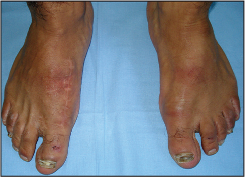 �A;Clinical appearance of the patient in Figure 5 at the fifth postoperative year. The patient was very satisfied with the result.