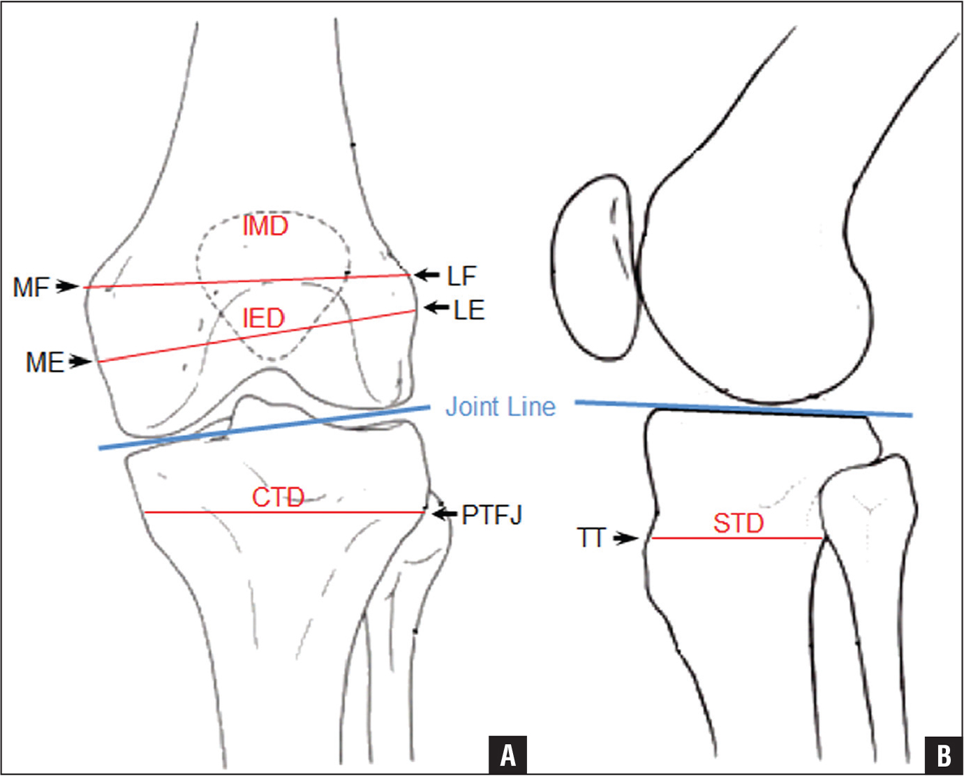 Calculating the Position of the Joint Line of the Knee Using ...