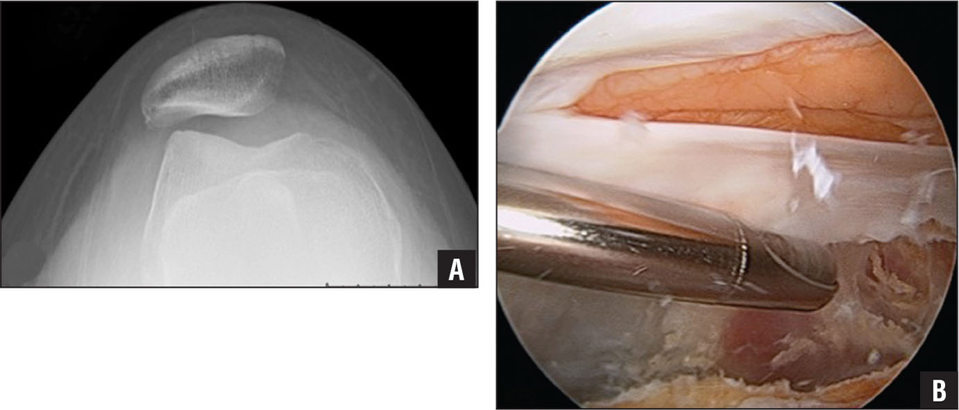 Nonligamentous Soft Tissue Pathology About the Knee: A Review