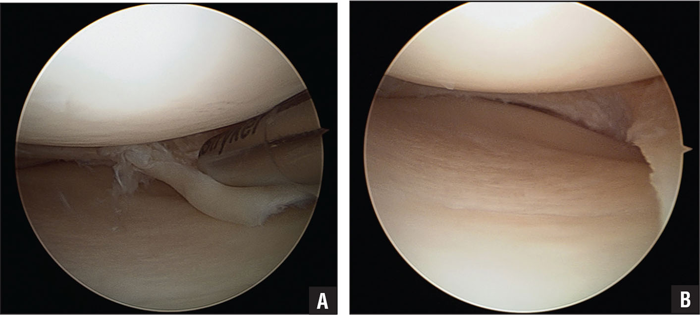 Medial Gutter Knee Acl Reconstruction Quadrapled Hamstring