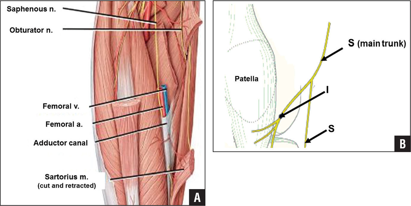 Saphenous And Infrapatellar Nerves At The Adductor Canal Anatomy