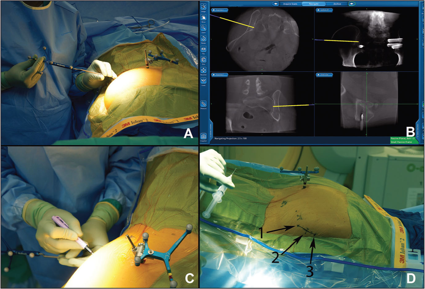 Identifying approximate implant entry points using the ball-tipped navigation probe on the skin with a StealthStation-generated projection (Medtronic, Minneapolis, Minnesota) (A, B). Marking locations on the skin and mapping the incision (C, D) with approximate implant entry points labeled 1, 2, and 3.