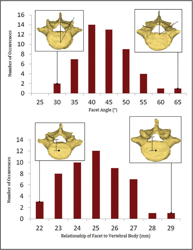 Graphic representation of the facet orientation (top) and the distance from the center of the vertebral body to the anterior portion of the superior facet of L5 (bottom).