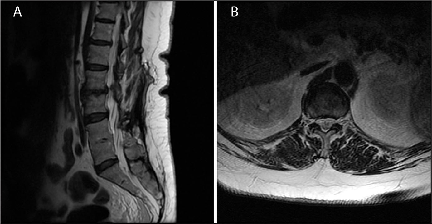 Sagittal (A) and axial (B) T2-weighted magnetic resonance images of the lumbar spine showing multilevel mild spondylosis that would not explain the patient's symptoms.