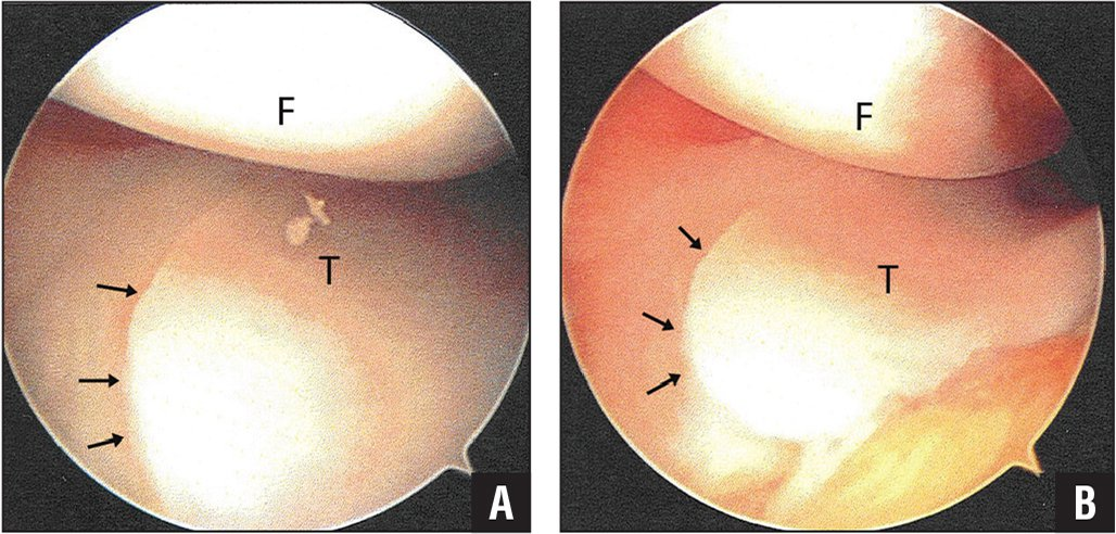 Arthroscopic images of the medial meniscus showing a small meniscus without evidence of a tear (arrows) compatible with meniscal hypoplasia. Abbreviations: F, femur; T, tibia.