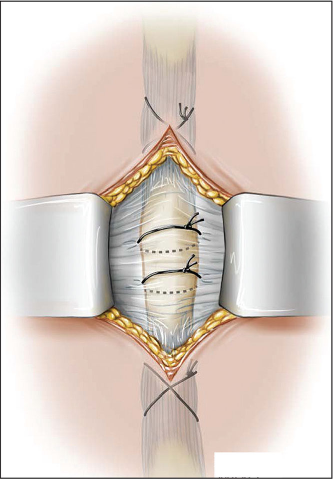 Transosseous sutures to repair the spinous process split and repair of the supra and infraspinous ligaments. (Used with permission of the Mayo Foundation for Medical Education and Research, all rights reserved.)