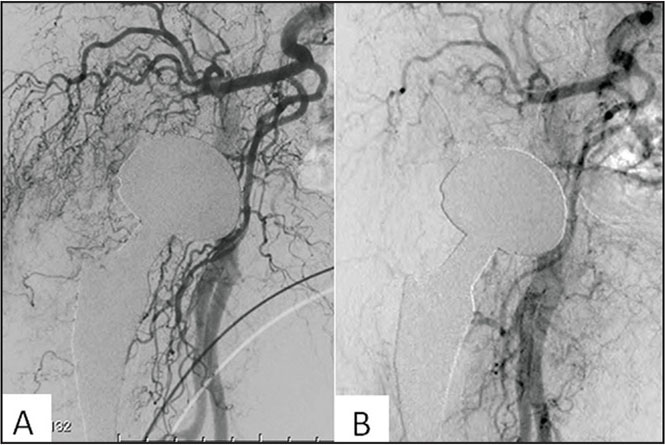 Angiography images before (A) and after (B) transcatheter arterial embolization.