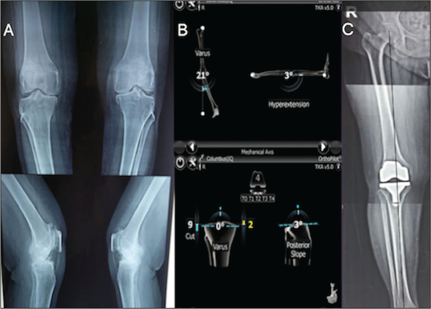 Radiographs of a patient with bilateral varus knee deformity (A). OrthoPilot (Aesculap AG & Co, Tuttlingen, Germany) computer-assisted navigation illustrating the patient's mechanical axis and planned tibial resection to restore neutral alignment (B). Postoperative long leg radiograph showing restoration of the mechanical axis (C).