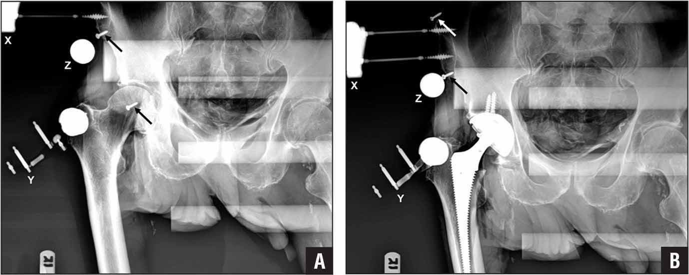 Anteroposterior radiographs were obtained pre- (A) and postoperatively (B). The pelvic platform and pelvic screws (X), tracker and its femoral platform (Y), and sizing object (Z) are visible. In the preoperative radiograph, 2 of 3 fiducial screws (arrows) used to demarcate the reference plane are also visible, with the third and superior-most screw out of the image frame. In the postoperative radiograph, 2 of 3 fiducial screws (arrows) are again visible, with the screw inserted posterior to the acetabulum obscured by the acetabular cup component. Radiographs were obtained with the specimen secured to the operating table with standard bolsters, which are also visible.