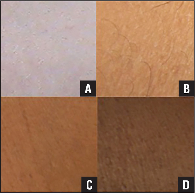 Examples of each of the skin pigmentation categories taken from screenshots of videos sent in the survey. Fair (A), medium-fair (B), medium-dark (C), and dark (D).
