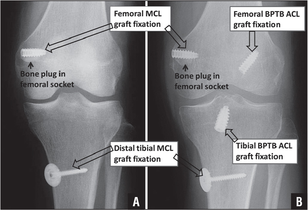Outcomes At A Minimum Of 2 Years After Medial Collateral Ligament