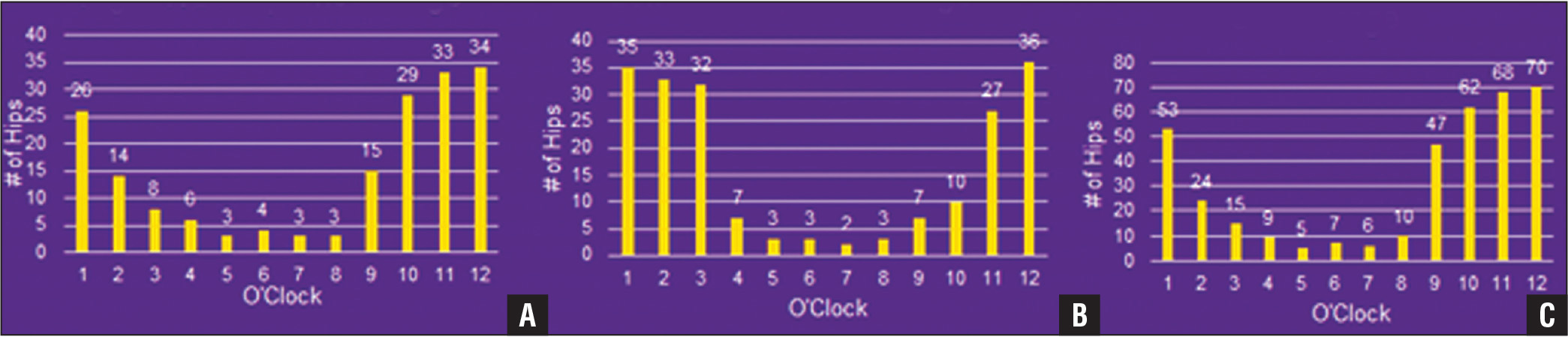 Clock face results for cup uncoverage. Right (A), left (B), and right plus left (C) total hip arthroplasty cup uncoverage.