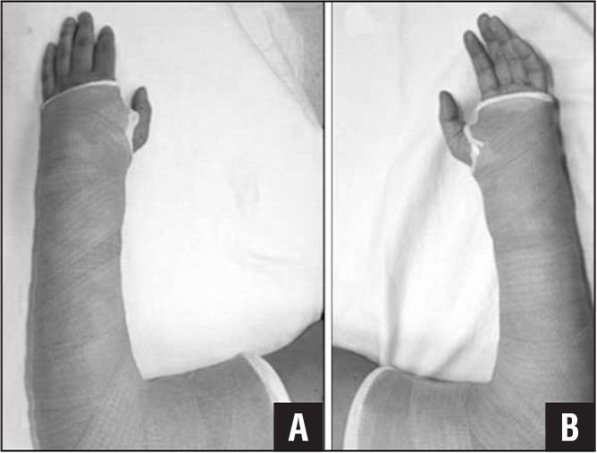 Dorsal (A) and volar (B) views of an intact no valve cast.