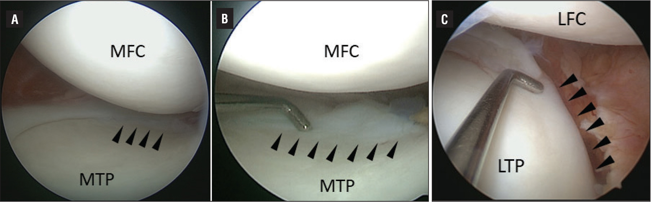 The medial meniscus is totally diminutive without tear (A), and its posterior horn fuses to the cartilage surface of the tibia (arrowheads) (A–B). Anterior horn and middle body of the lateral meniscus are absent (C). The degenerative horizontal tear is seen at the posterior horn of the lateral meniscus, and its body terminates and fuses to the cartilage surface of the tibia in front of the popliteal hiatus (arrowheads) (C). Abbreviations: LFC, lateral femoral condyle; LTP, lateral tibial plateau; MFC, medial femoral condyle; MTP, medial tibial plateau.