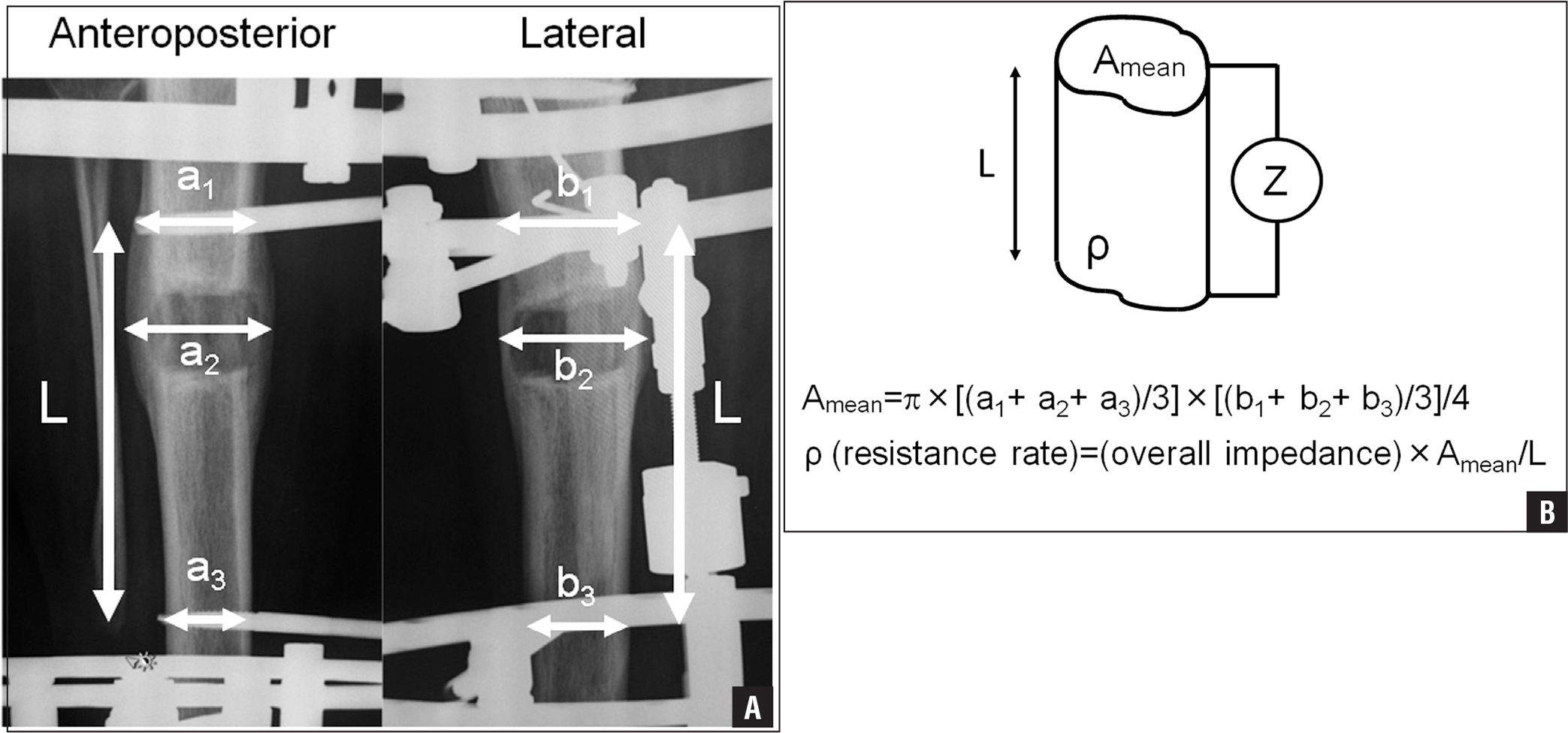 Photographs showing measurement of electrical resistance rates between the proximal and the distal pin regions. The resistance rate was calculated by measuring transverse diameter and anteroposterior diameter at the proximal pin region, maturation callus site, and distal pin region. Bone tissue was assumed to be in the shape of an oval column based on averaging of these values (A). Diagram illustrating measurement of mean cross-sectional area (Amean) and the resistance rate (ρ) (B).