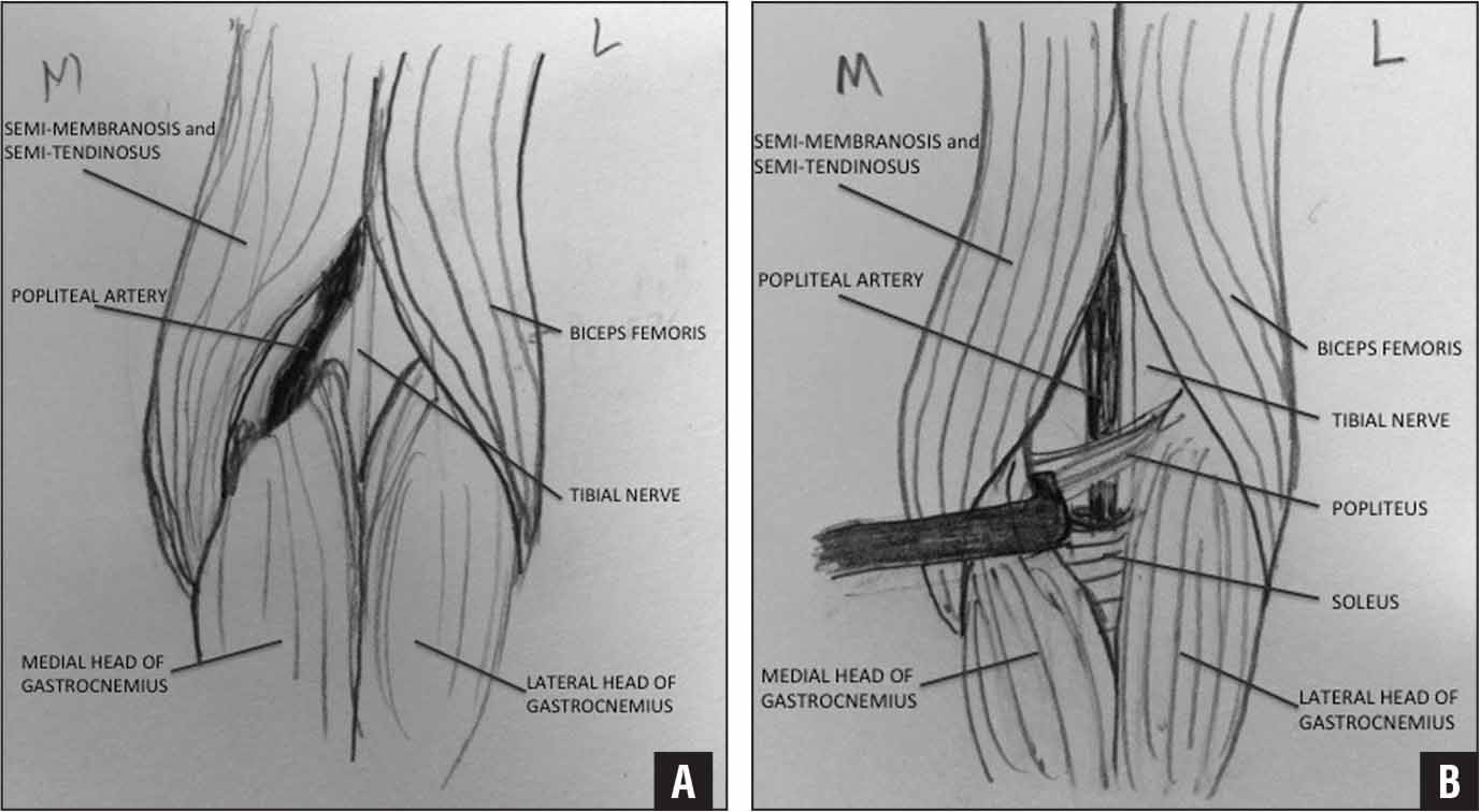 Illustrations of 2 types of popliteal artery entrapment syndrome. The popliteal artery has an abnormal course due to the origin of the medial gastrocnemius (A). With the gastrocnemius retracted, the soleus sling or hypertrophy of the popliteus could compress the artery (B).