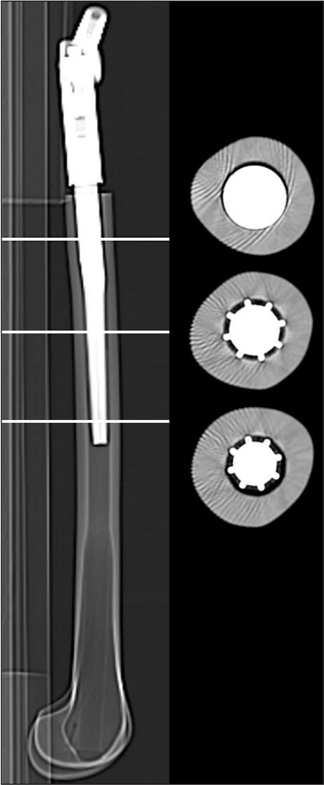 Computed tomography scan for analysis of the metal–bone interface (left) with cross-section references of the proximal, shaft, and distal parts of the stem (right).
