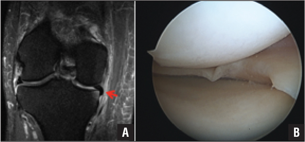 "Coronal T2 magnetic resonance image showing inferiorly displaced meniscal fragment with downward curved ""comma"" appearance (arrow) (A). Arthroscopic image showing the inferiorly displaced meniscal fragment within the meniscotibial recess (B)."