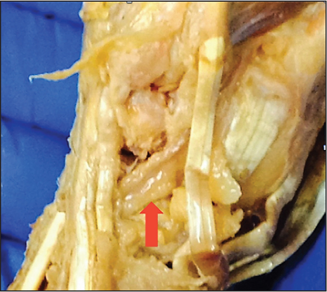 A Cadaveric Study Of The Mean Distance Of The Radial Artery During