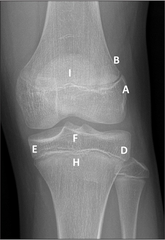 Radiographic landmarks used for the abbreviated knee scale: A, lateral distal femoral epiphysis; B, lateral distal femoral metaphysis; D, lateral proximal tibial epiphysis; E, medial proximal tibial epiphysis; F, tibial tubercle; H, proximal tibial physis; and I, distal femoral physis.